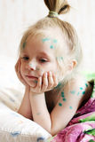 La muchacha sufre varicela imagen de archivo