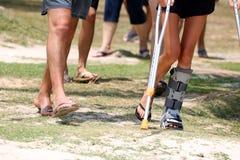 La muchacha turística del accidente está caminando por las muletas en el jardín Imágenes de archivo libres de regalías