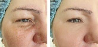 la mujer arruga la cara de la regeneración antes y después de procedimientos fotos de archivo libres de regalías