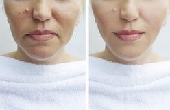 La mujer arruga la cara del efecto del retiro de la regeneración antes y después de procedimientos fotografía de archivo