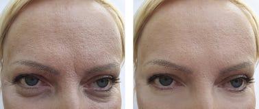 La mujer arruga la cara paciente del efecto de la diferencia del biorevitalization del retiro de la regeneración antes y después  imagen de archivo libre de regalías