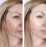 La mujer arruga el tratamiento de la piel antes y después de la regeneración de los procedimientos de la dermatología de la corre fotos de archivo