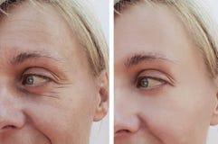 La mujer arruga en concepto de la cara antes y después de procedimientos antienvejecedores de la inyección paciente foto de archivo
