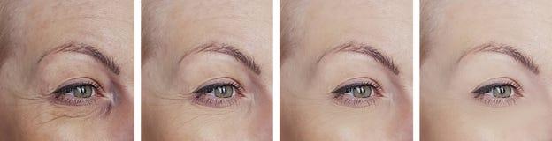 La mujer arruga ojos antes después de collage fotografía de archivo libre de regalías