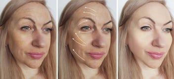 La mujer arruga procedimientos de la elevación del rejuvenecimiento de la cosmetología de la corrección de la cara de la tensión  fotos de archivo
