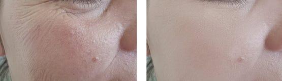 La mujer arruga la regeneración antes y después de la corrección fotografía de archivo libre de regalías
