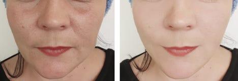 La mujer arruga retiro de los resultados del problema de la regeneración antes y después de la corrección fotos de archivo