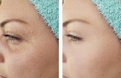 La mujer arruga retiro de la regeneración antes y después de la corrección imagenes de archivo