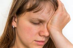La mujer con dolor de ojos se está sosteniendo el ojo de dolor Foto de archivo libre de regalías