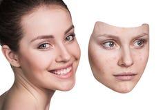 La mujer joven pone la máscara ausente con la mala piel Imagen de archivo