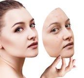 La mujer joven pone la máscara ausente con la mala piel Foto de archivo
