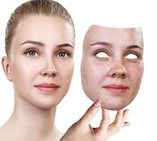 La mujer joven pone la máscara ausente con la mala piel Foto de archivo libre de regalías