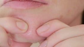 La mujer machaca acné en la cara Piel aceitosa Piel del problema metrajes