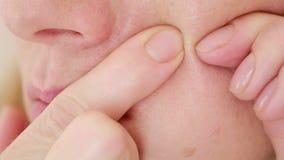 La mujer machaca acné en la cara Piel aceitosa Piel del problema almacen de video