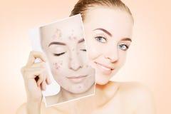 La mujer magnífica joven con la piel perfecta lanza su cara del pi Fotografía de archivo