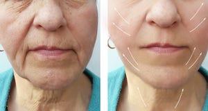 La mujer mayor arruga al paciente antes y después de llenador que hidrata el procedimiento imagen de archivo libre de regalías
