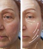 La mujer mayor arruga antes después de la tensión del contorno de la medicina que hidrata la regeneración del efecto del procedim fotografía de archivo libre de regalías