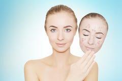 La mujer se lleva la máscara con el acné y las espinillas, fondo azul Fotos de archivo