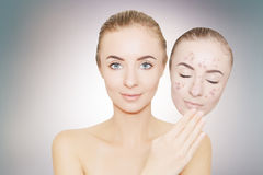 La mujer se lleva la máscara con el acné y las espinillas, fondo gris Imagen de archivo libre de regalías