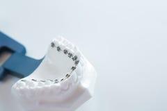 La parenthèse dentaire de mâchoire inférieure attache le modèle sur le blanc image libre de droits