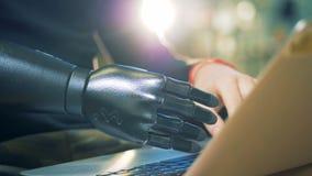 La personne avec les travaux de main prosthétiques avec un ordinateur portable, se ferment  banque de vidéos
