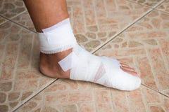 La pierna fue vendada Fotos de archivo