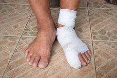 La pierna fue vendada Imagen de archivo libre de regalías