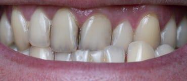 La placca batterica sui denti dell'uomo ha causato dal residuo del caffè immagine stock libera da diritti