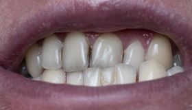 La plaque dentaire sur les dents de l'homme a causé par le résiduel de café photographie stock
