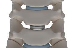 La prothèse artificielle de disque intervertébral est installée entre t illustration libre de droits