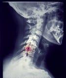La radio rappresenta graficamente il cranio e la vertebra cervicale Immagini Stock