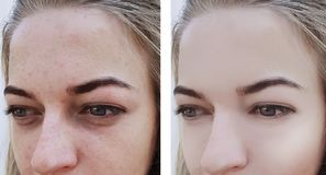 La ragazza corruga gli occhi prima e dopo rimozione, borse, rigonfiamento fotografia stock