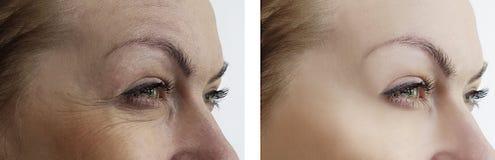 La ragazza corruga l'occhio di rimozione prima e dopo i trattamenti di sollevamento di terapia immagini stock