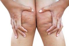 la rodilla de mujeres se preocupa de piel gorda en blanco imagen de archivo libre de regalías