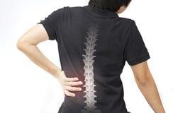 La spina dorsale disossa la lesione immagine stock