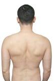 La stirata sfregia sulla parte posteriore del maschio fotografia stock libera da diritti