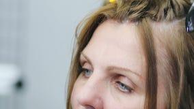 La tête d'une femme européenne adulte avec la peau de problème, pellicules dans ses cheveux clips vidéos