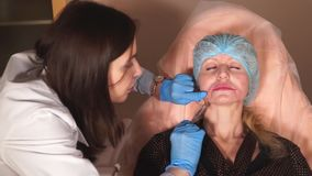 La toxina botulinum de la colitis del Cosmetologist, marioneta alinea, para quitar arrugas metrajes