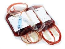 La trasfusione sanguinoso-dona Immagini Stock Libere da Diritti
