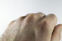 La vue étroite de la main sèche et criquée la frotte avec le poing, problème de peau Image stock