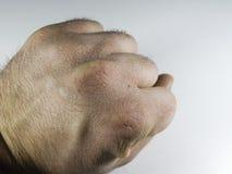 La vue étroite de la main sèche et criquée la frotte avec le poing, problème de peau Photographie stock