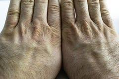La vue étroite de la main sèche et criquée la frotte avec le poing, problème de peau Photos stock