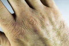 La vue étroite de la main sèche et criquée la frotte avec le poing, problème de peau Images stock