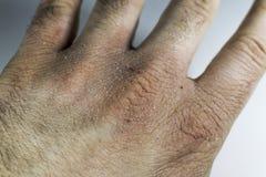 La vue étroite de la main sèche et criquée la frotte avec le poing, problème de peau Photo libre de droits