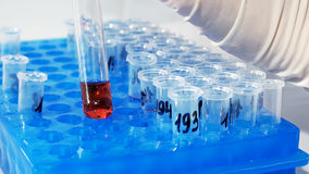 Lab technician scientist makes chemical analysis. Lab technician scientist performs medical clinic chemical analysis and diagnostics using test tube phial Royalty Free Stock Photos