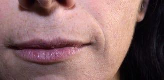 labbra corrugate di una donna di mezza età, 40-45 anni Immagine Stock