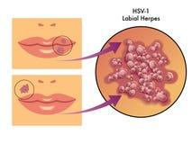 Labialny herpes Zdjęcie Royalty Free
