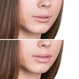 Labios femeninos antes y después del aumento Imagen de archivo libre de regalías