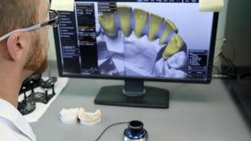 Laboratorio de la ortodoncia para los implantes dentales del modelado y de la producción para los clientes, trabajo profesional e almacen de metraje de vídeo