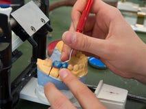 Laboratorio dental imagen de archivo libre de regalías